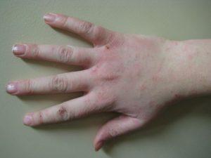 Human_hand_with_dermatitis-300x225