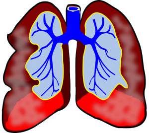 lungs-diagram-300x268