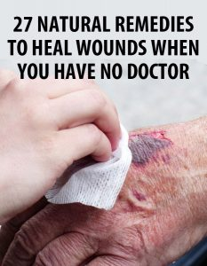 natural-remedies-wound-pin-233x300